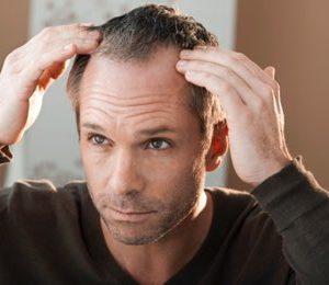 10 Shampoos gegen Haarausfall – Helfen sie wirklich?