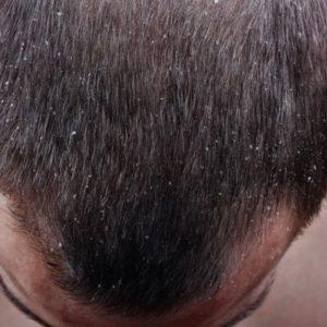 Verursachen Schuppen Haarausfall? [Ultimativer Ratgeber]