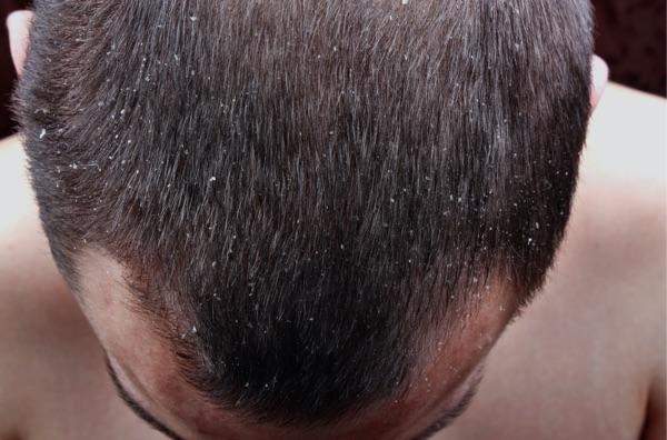 Schuppen Haarausfall
