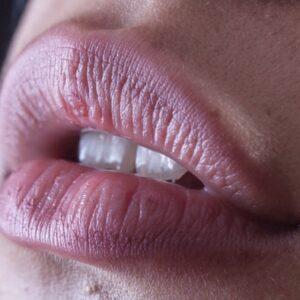 Mit dieser beruhigenden DIY Lippenmaske kannst Du Deine rissigen Lippen einfach und effektiv behandeln